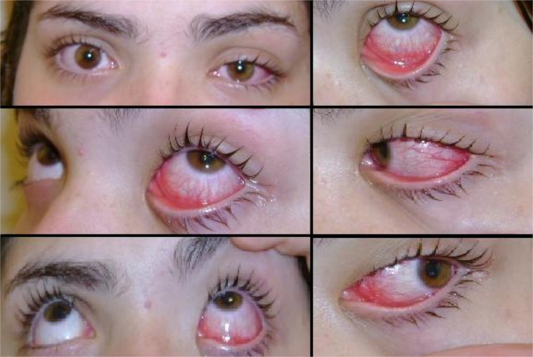 Conjonctivite ou oeil rose