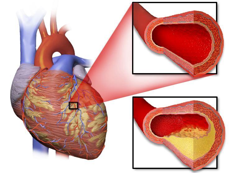 Maladies coronariennes